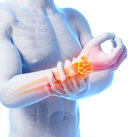 Illustration of hand pain