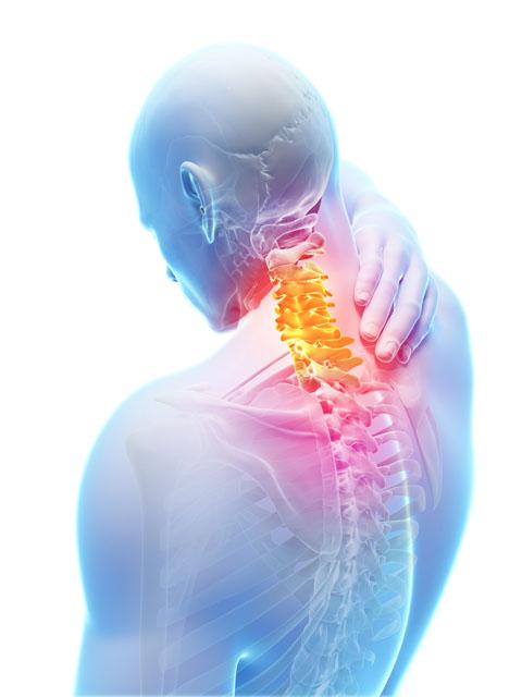 Illustration showing upper back pain